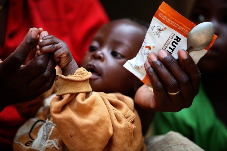 Special food packets are being donated by a Langley-based charity to help malnourished children in the Horn of Africa.