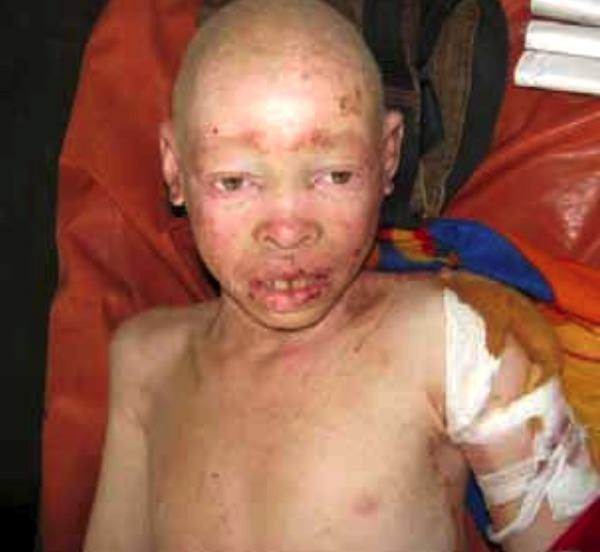 Albino 12-year-old Tanzanian boy Adam Robert was attacked with a machete Oct 14 by members of his family