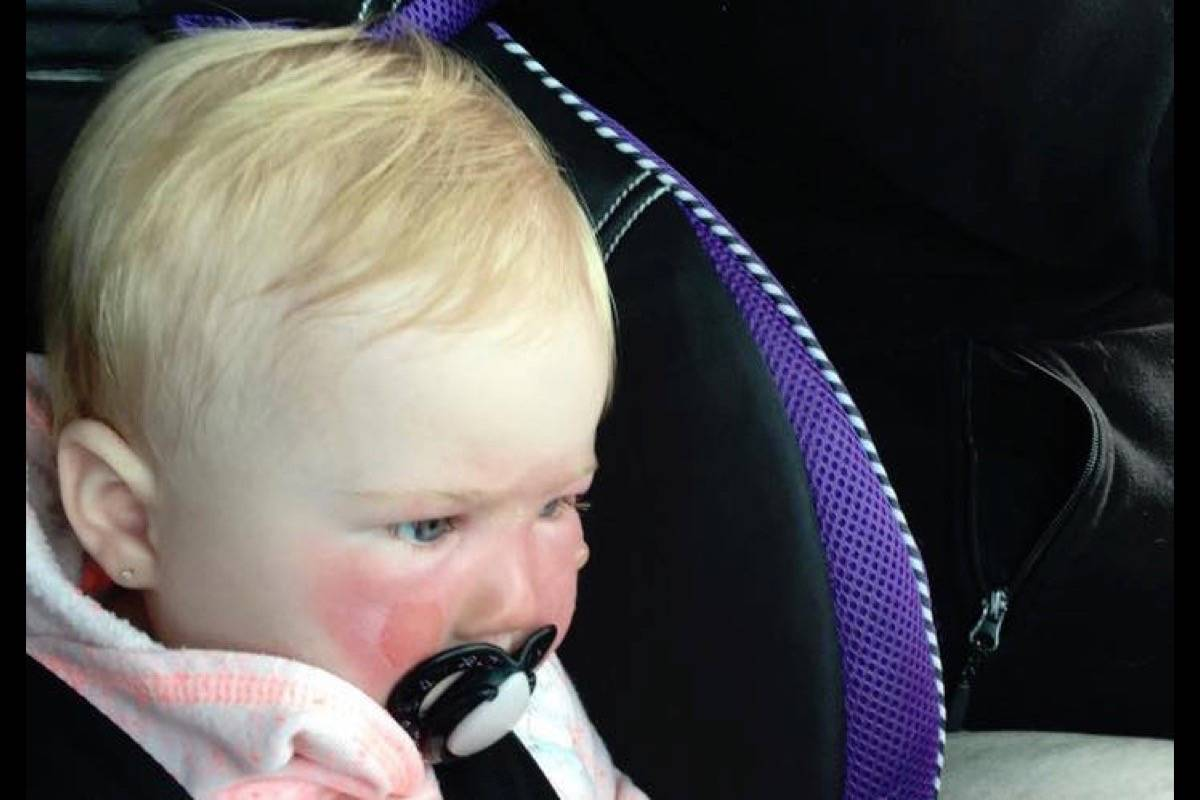 UPDATE: Health Canada investigating claims Banana Boat sunscreen burned babies