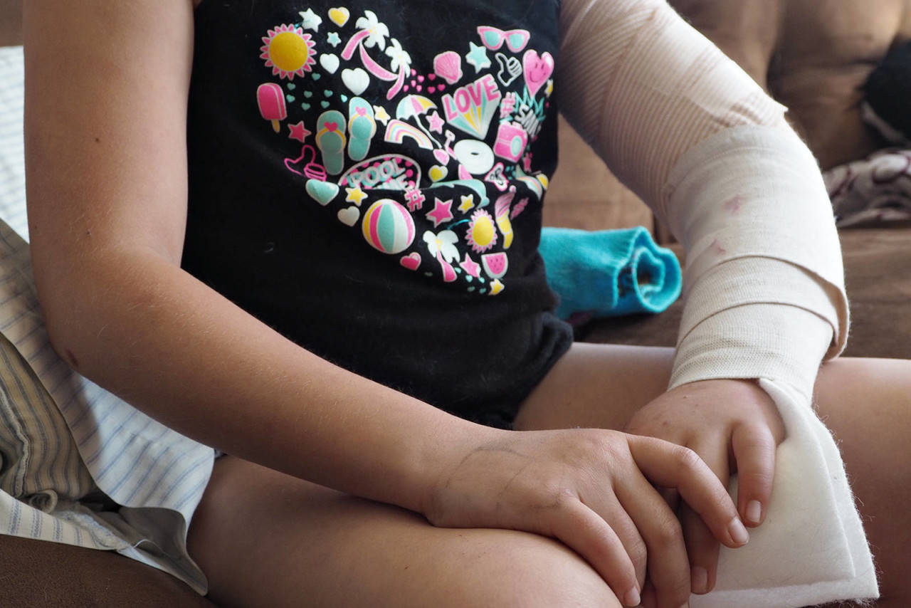 A 10-year-old girl, whose parents asked that she not be identified, will spend the rest of her summer recovering from severe injuries she received when she was mauled by a pitbull Saturday. (CHRIS BUSH/The News Bulletin)