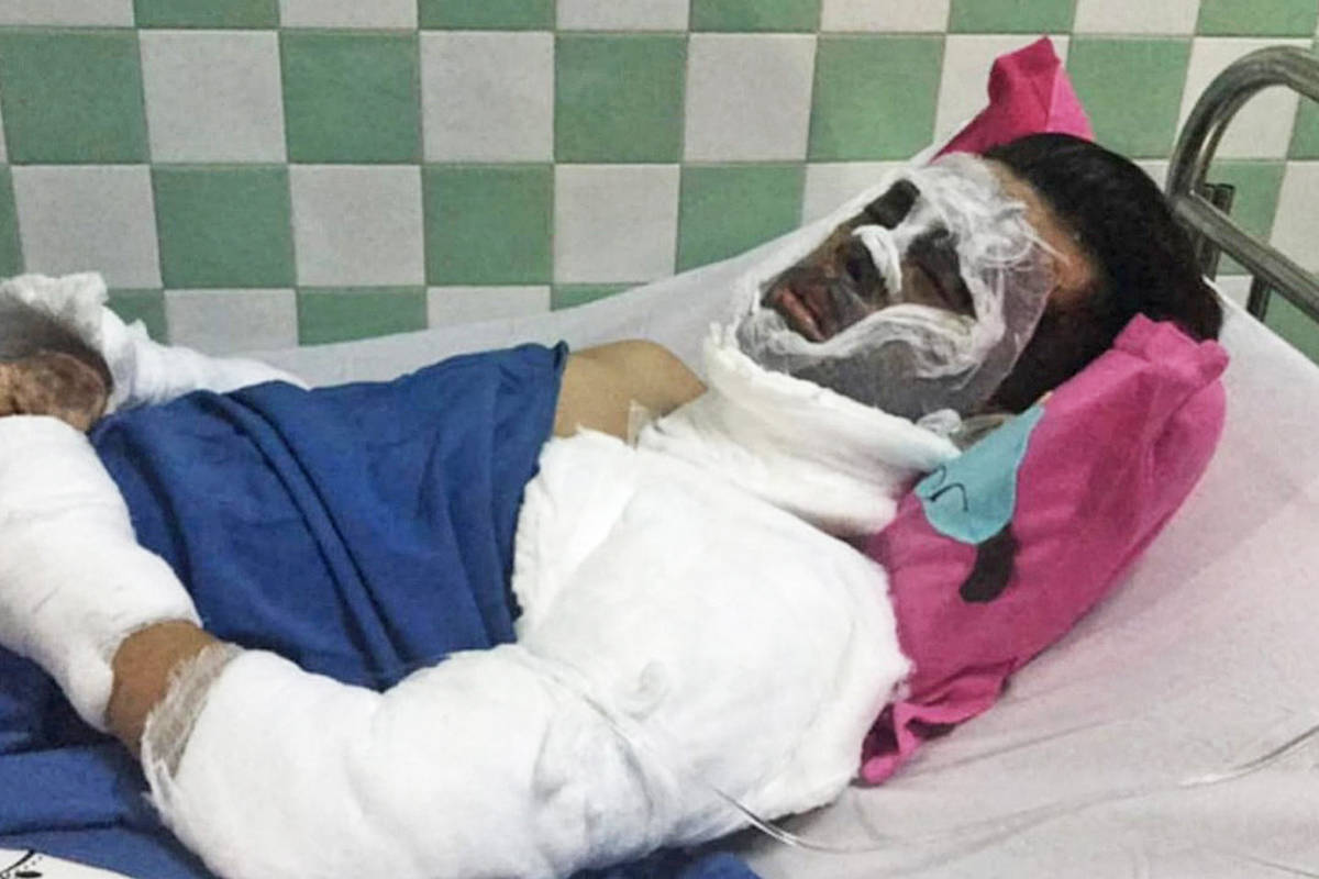 'Tom' Nghiem Vo of Maple Ridge has suffered acid burns to most of his face and one eye. (Contributed)