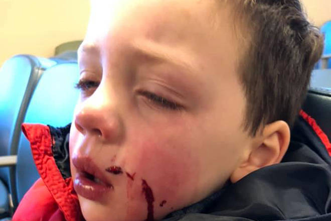 Family with ties to B.C. warns of dog danger after child bitten