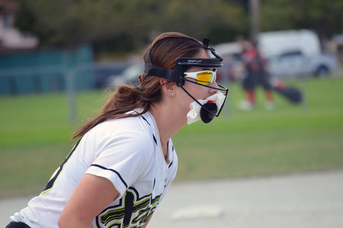 Xtreme player Olivia Sing had a nose bleed and wanted to continue playing so she put a tissue under her mask so that blood would not drip on her uniform. Sharon Dickens photo.