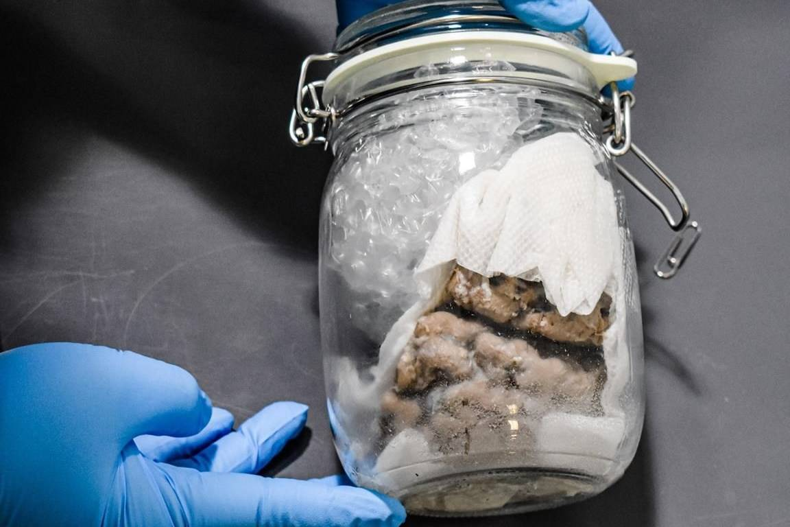 'Nothing surprises us anymore:' U.S. border officials find brain in package