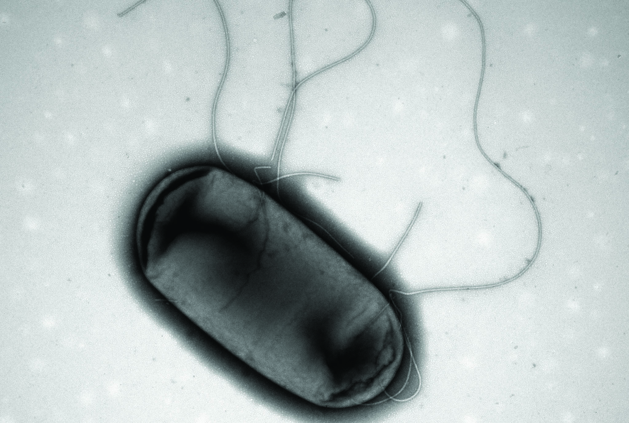 Electron micrograph image of E.coli is shown in a handout photo. MCR-1, a gene that makes bacteria resistant to the killing effects of antibiotics, has been detected in stored samples of E. coli collected in 2010 in Canada. Now scientists are wondering if the superbug gene had made its way into Canada even earlier - and just what that could mean. (THE CANADIAN PRESS/HO-Brian Coombes Laboratory, McMaster University)