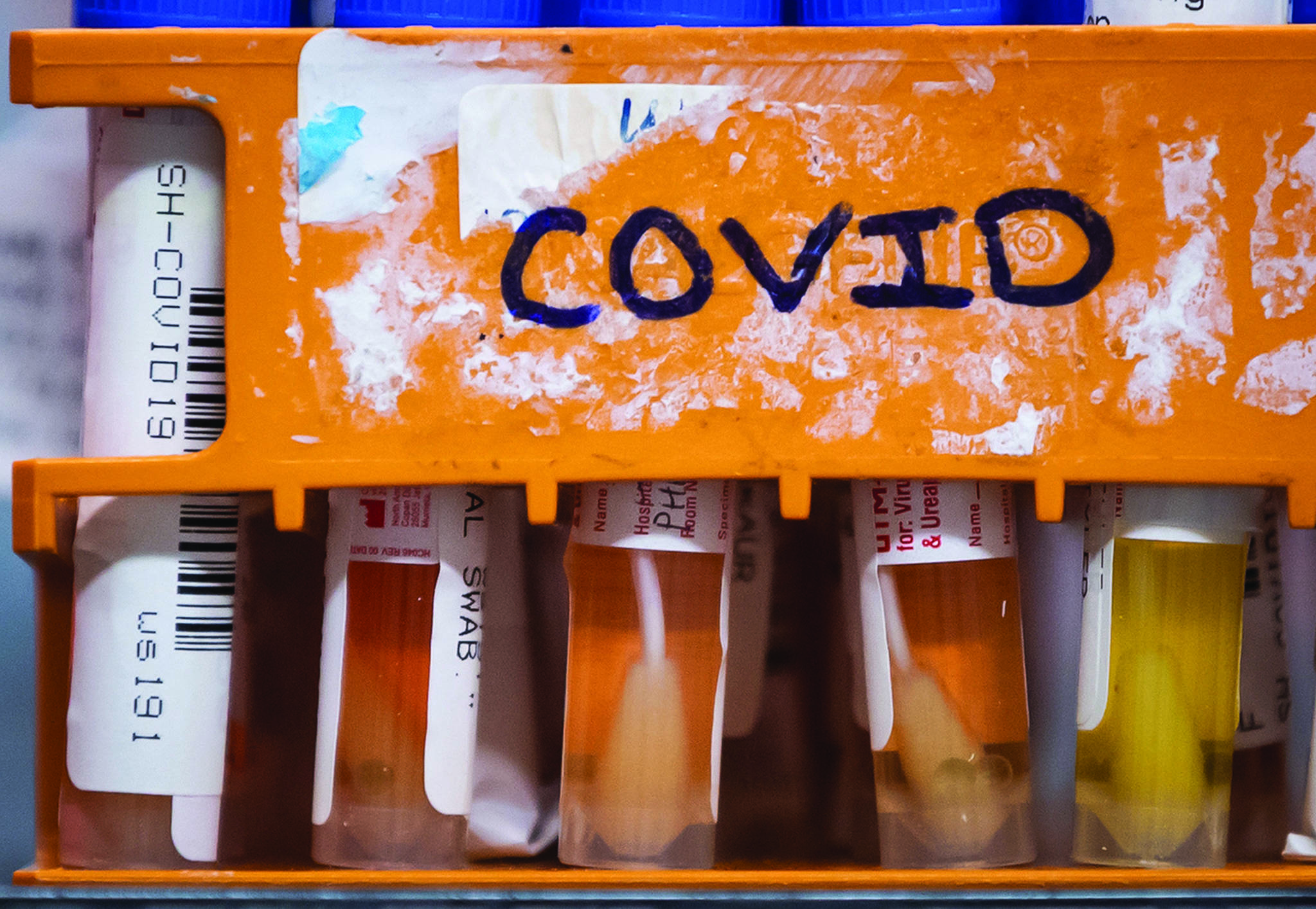Specimens to be tested for COVID-19 are seen at LifeLabs after being logged upon receipt at the company's lab, in Surrey, B.C., on Thursday, March 26, 2020. THE CANADIAN PRESS/Darryl Dyck