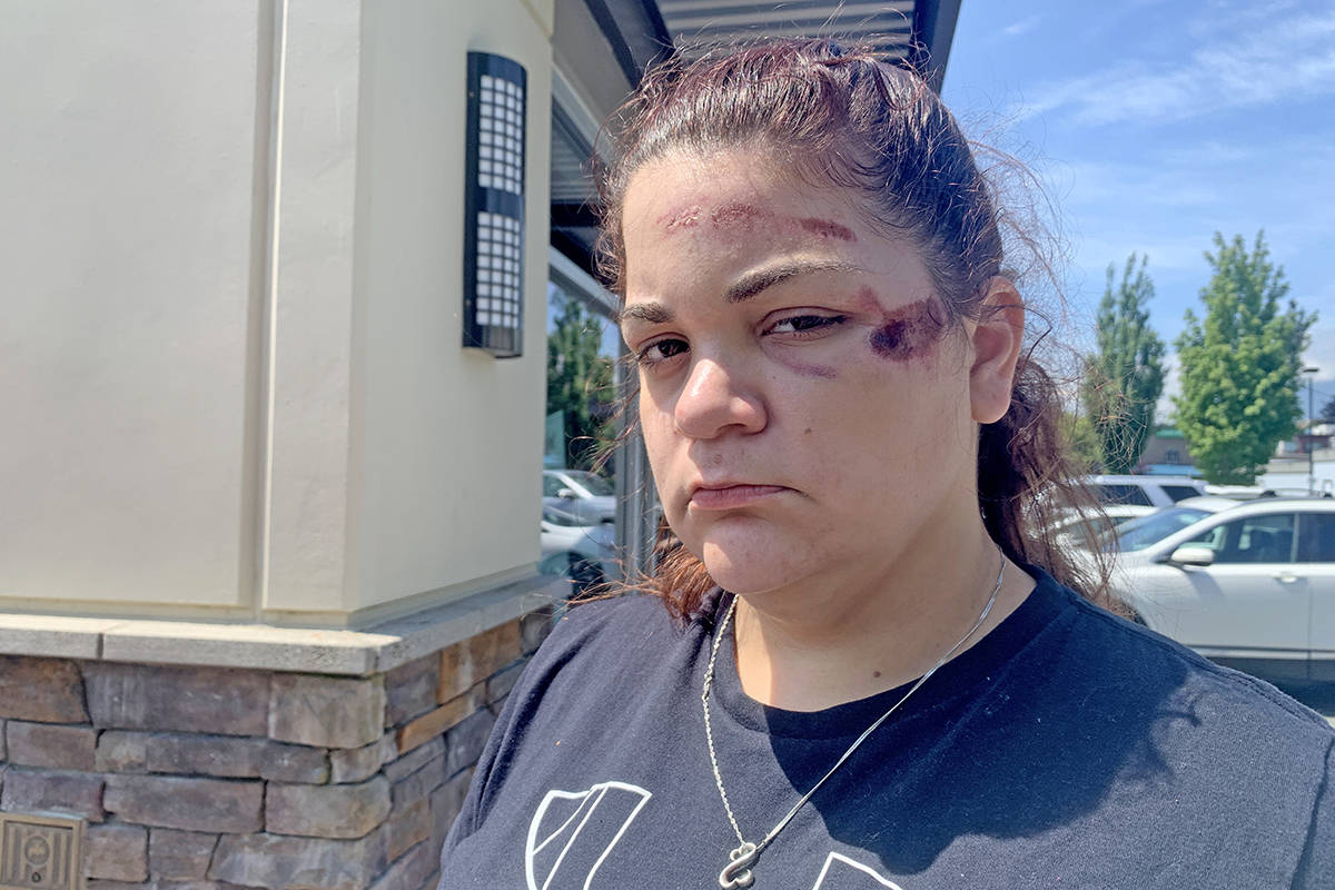 Sophia Koehler on June 25, 2020 two days after she says she was violently arrested at her home during a mental health wellness check. An RCMP spokesperson said Koehler did not co-operate with police, something she denies. (Paul Henderson/ The Chilliwack Progress)