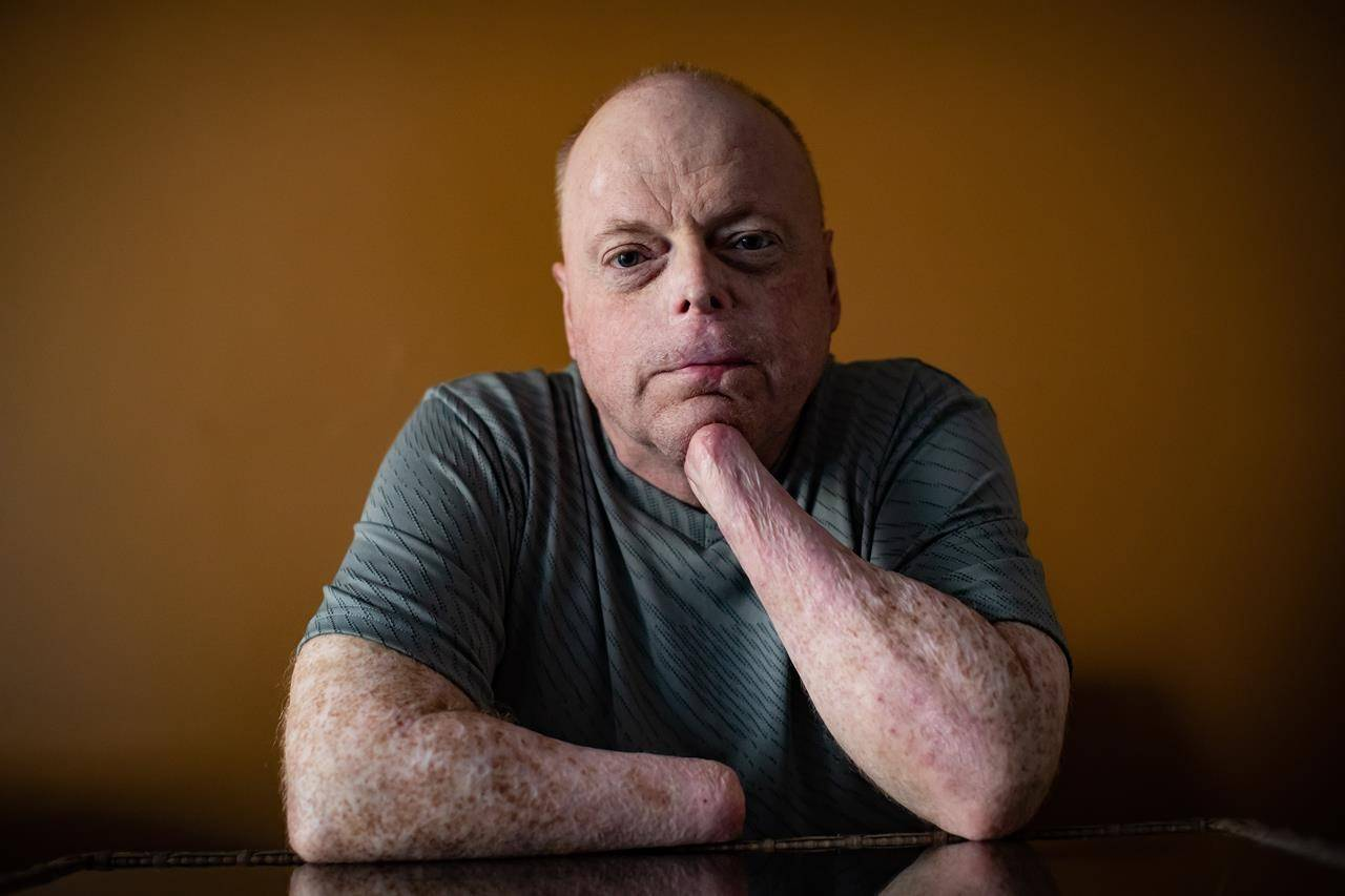 Rick Thompson had all of his limbs amputated after contracting bacterial meningitis and septic shock in 2015. (The Canadian Press)