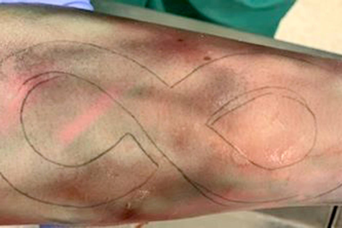 Langley RCMP released a photo of this infinity tattoo from the man found dead in the Nicomekl River on June 7, 2020 (RCMP photo)