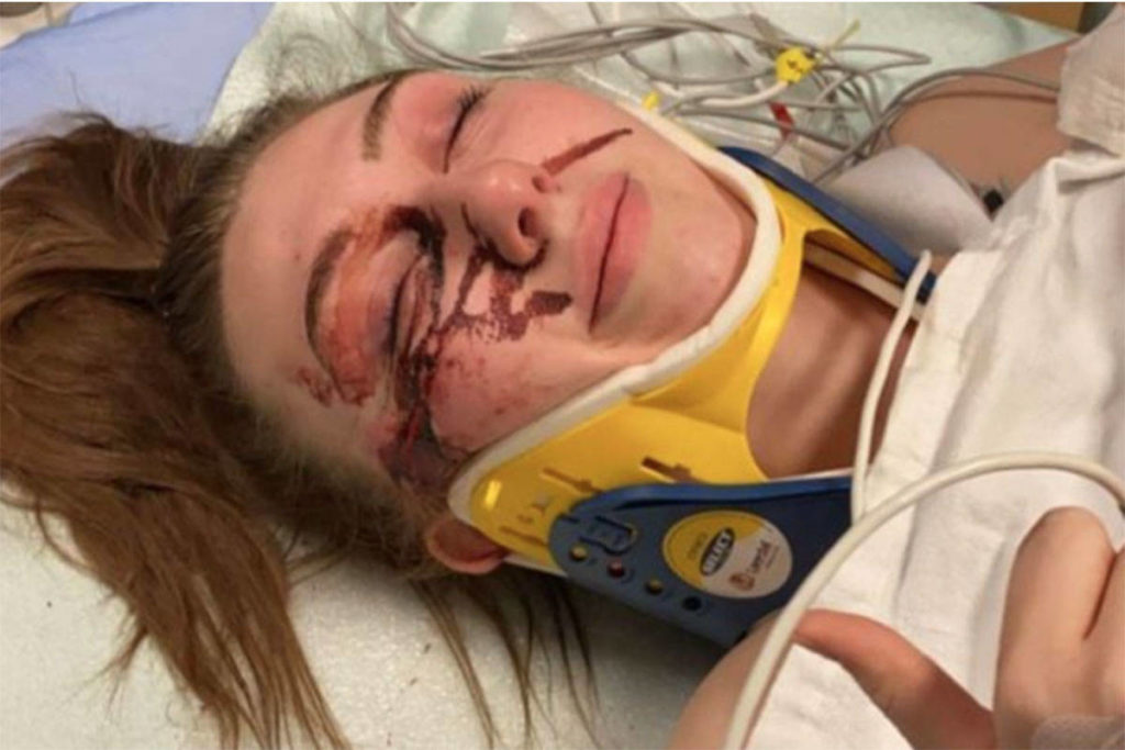 The family and friends of Abbotsford resident Kaitlyn Cassels have launched a GoFundMe for her after she suffered serious injuries following a bad fall on Thursday night. (Submitted)
