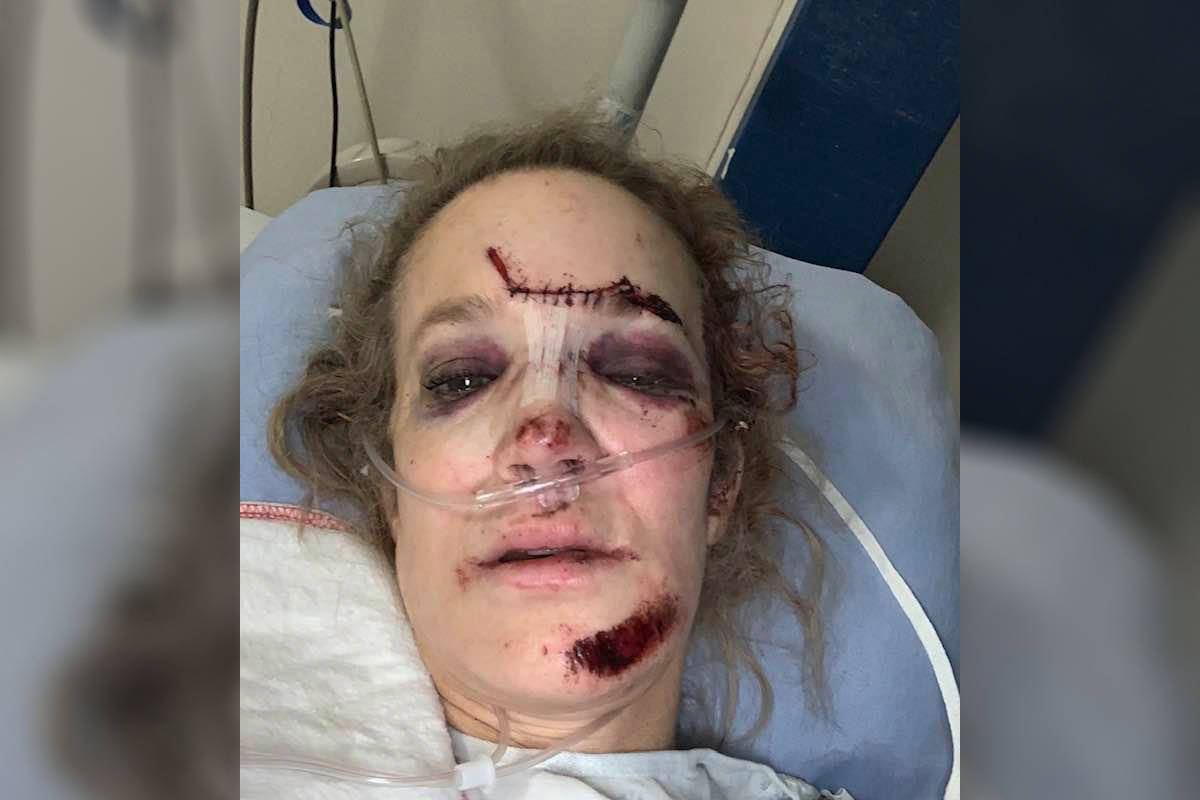 Dr. Rachel Staples has been recovering at the Victoria General Hospital since getting struck by a vehicle Dec. 4. (Courtesy of Rachel Staples)