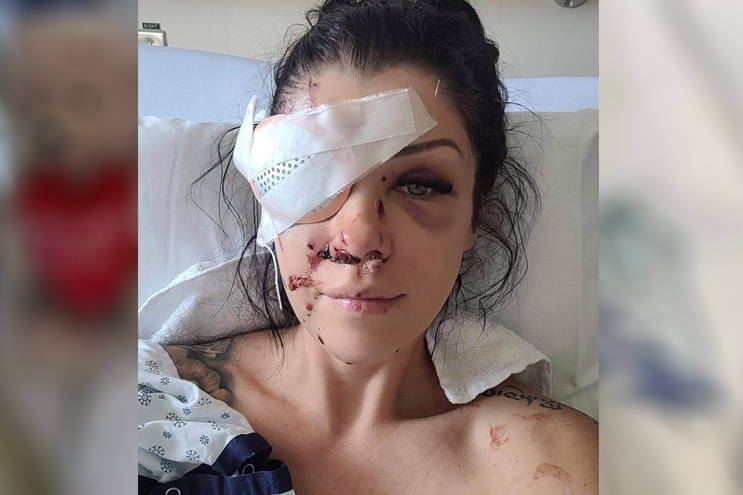 Regina Hampson, who was shot in the face while intervening in a mental health crisis in a north Nanaimo home on Saturday, is now in hospital in Vancouver. (Photo submitted)