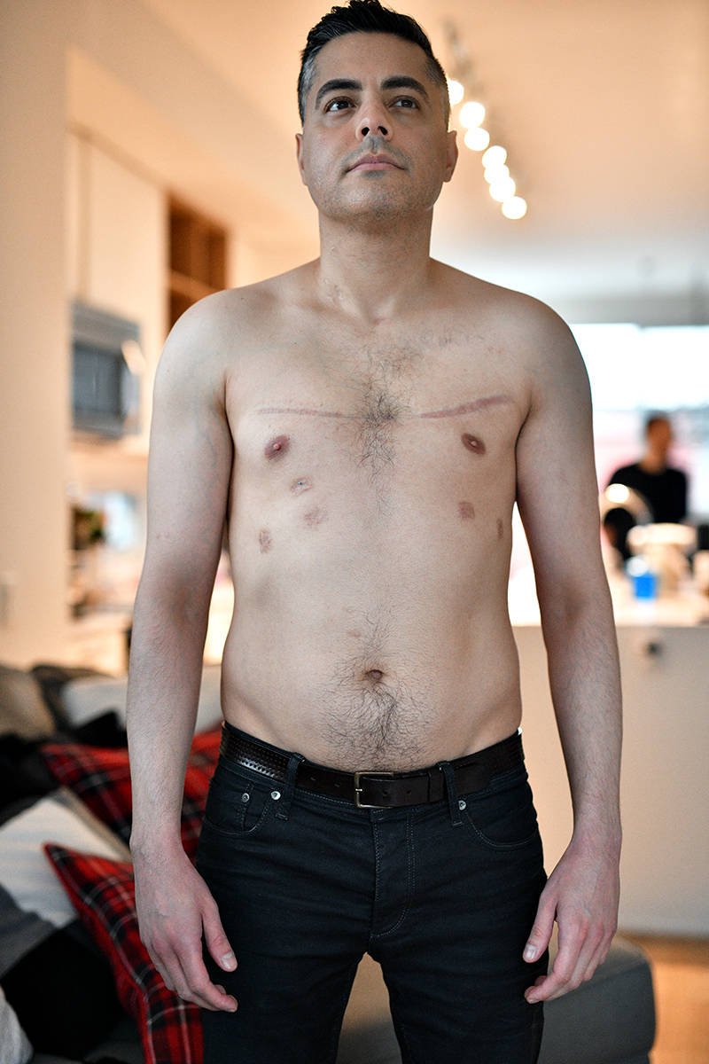 Nick Kanaan can breathe deeply following his double lung transplant (special to Langley Advance Times)