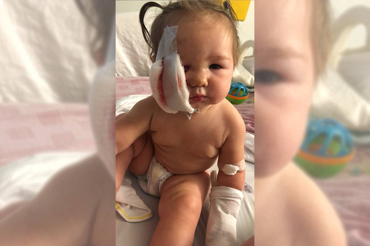 One-year-old RosieMay of Nakusp is currently in the Kelowna General Hospital being treated for a dog bite. (Contributed-Sarah Warren)