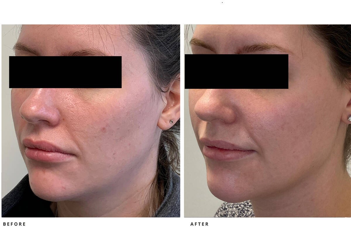 Filler for chin and jawline can make a noticeable difference.