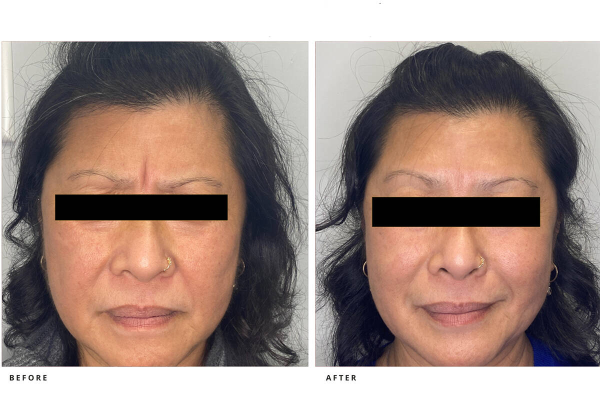 Neuromodualtor (Botox) for frown and forehead.